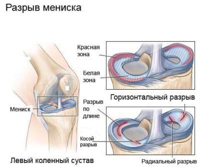 ízületi fájdalmakhoz hogyan kell használni a dimexidot