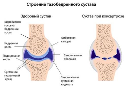 ahol a csípőízület coxarthrosisát 2 fokkal lehet kezelni