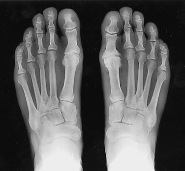 fáj a láb ízületei a lábujjak és a lábak ízületi gyulladása