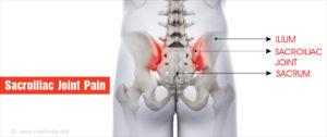 ízületi fájdalom blokk