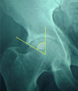 menopauzás fájdalom a csípőízületekben