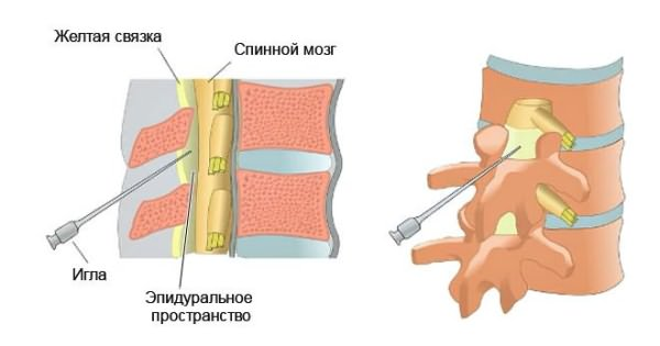 milyen gyógyszerek segítik a nyaki osteochondrozist