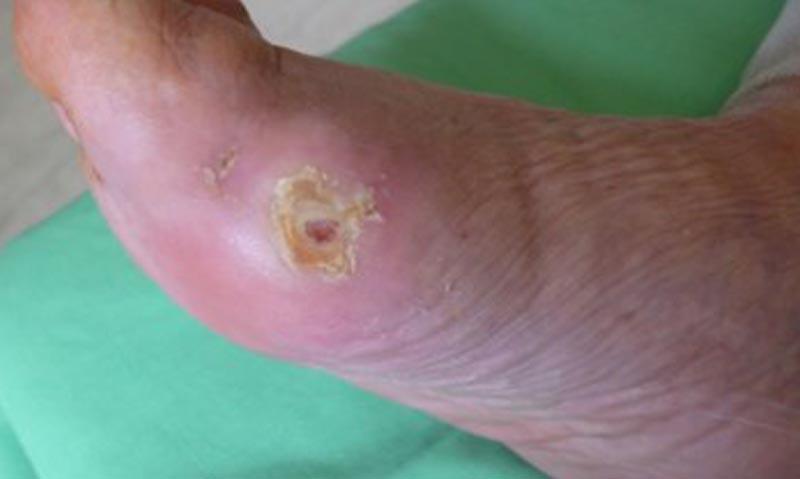 Láb- és körömgomba tünetei és kezelése