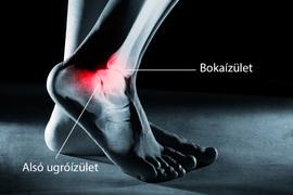 fáj a boka körüli ízület