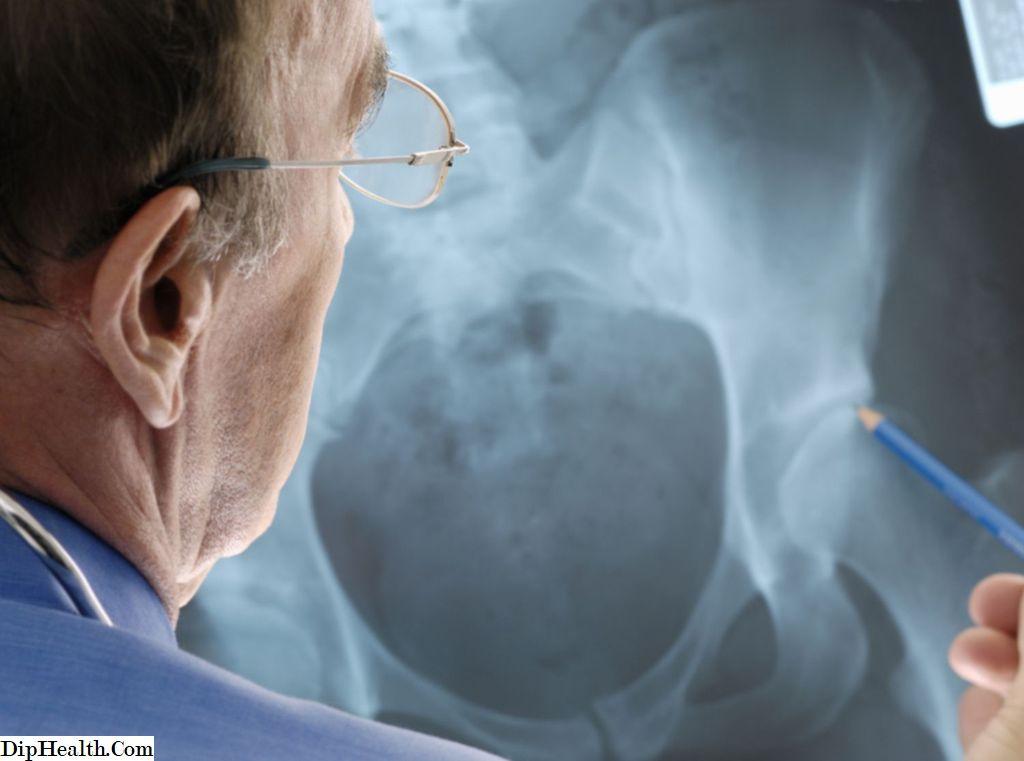 ortofén a csípőízület ízületi gyulladásában)