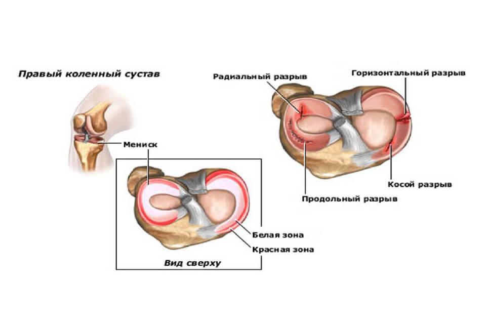 a térd izületi gyulladásom van izomfájdalom ízületi láza