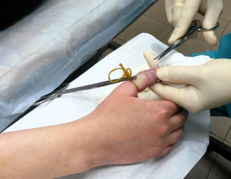 hogyan lehet eltávolítani a gyulladást az ujjízületről