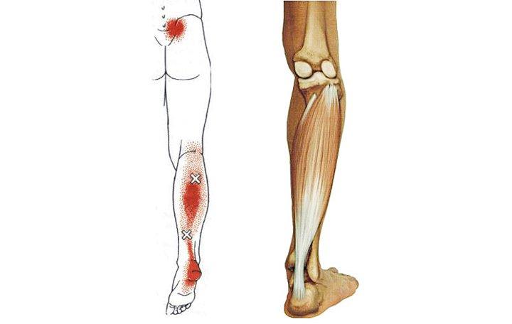 artrózis lapos lábú kezelés hogyan lehet meghatározni, mi a fáj a csípőízület