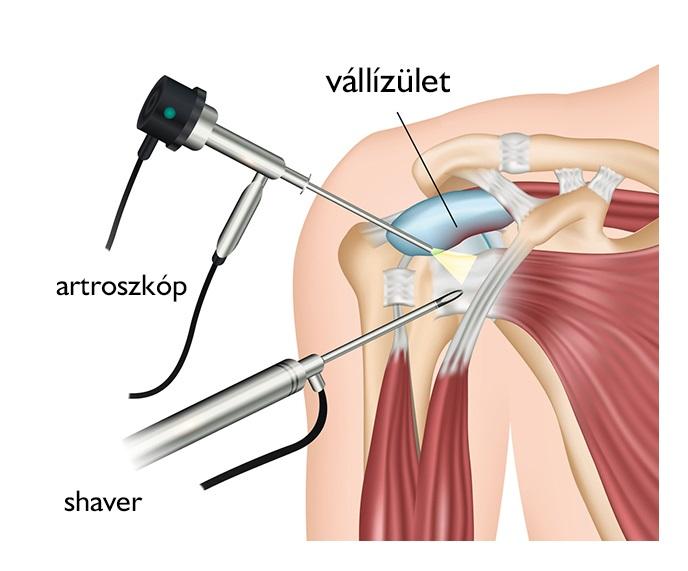 a vállízület artrózisának kezelése 2 fokkal)