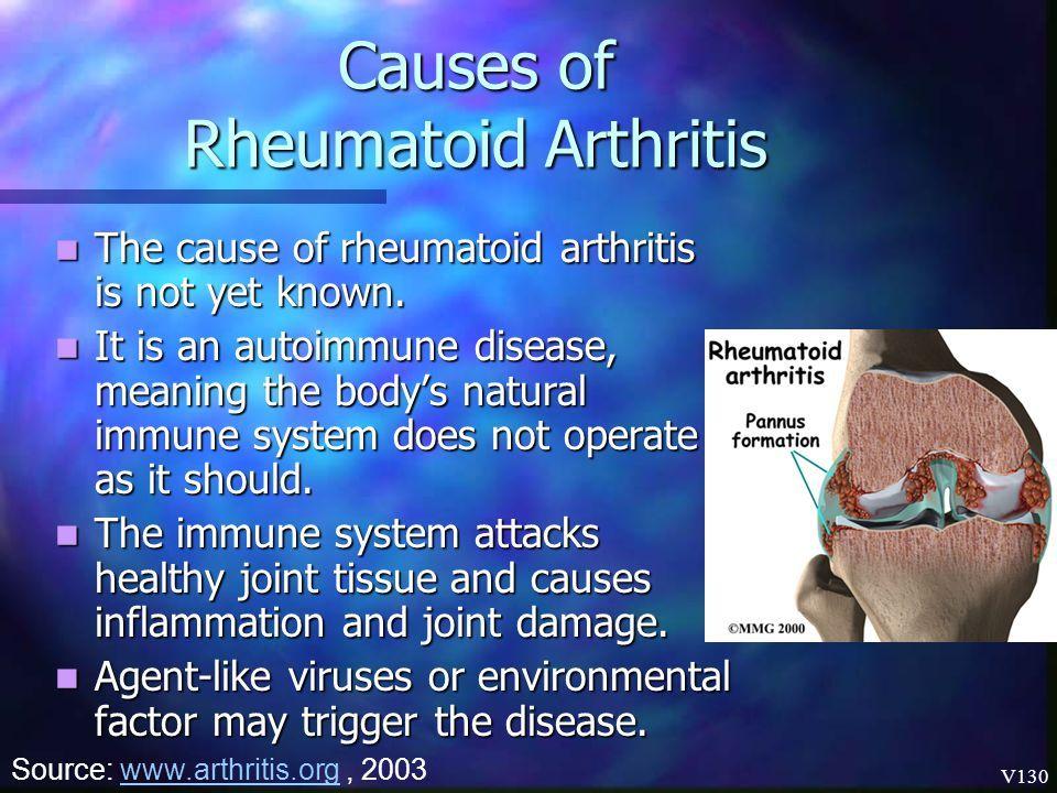 a lágy szövetek rheumatoid arthritisének kezelése)