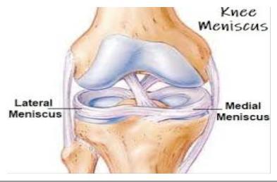 a térd medialis meniszkuszának károsodása, kezelése