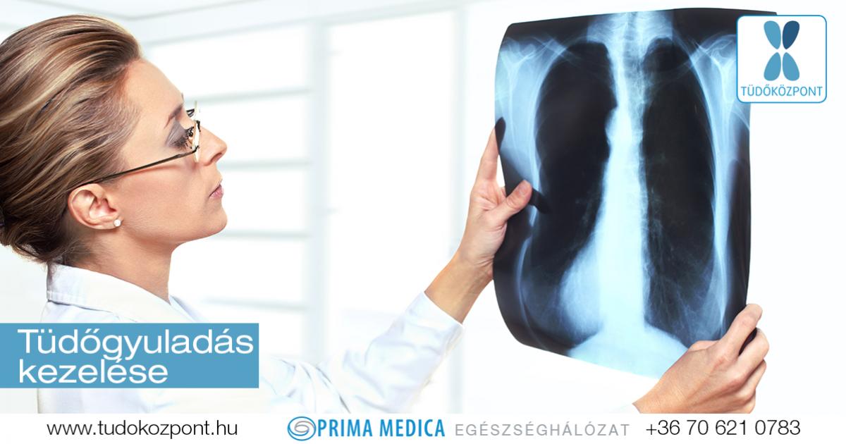 Atípusos tüdőgyulladás - Gyógyhírek