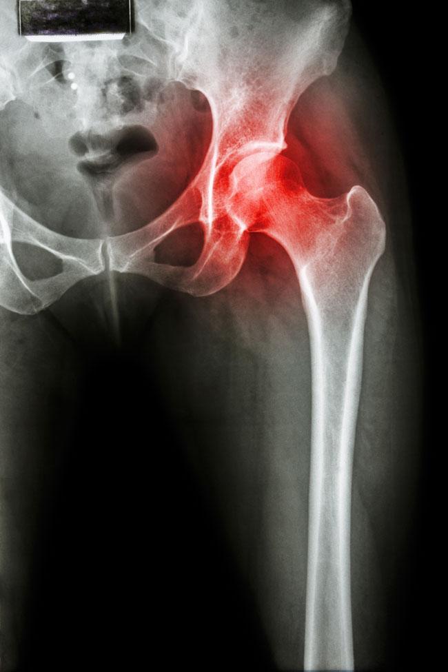 fekvő csípő fájdalom