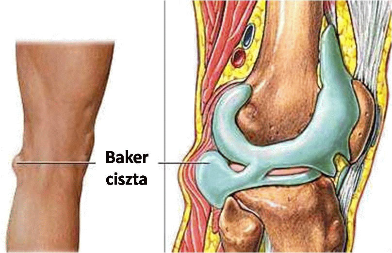 Fájdalmas csomók a lábszáron